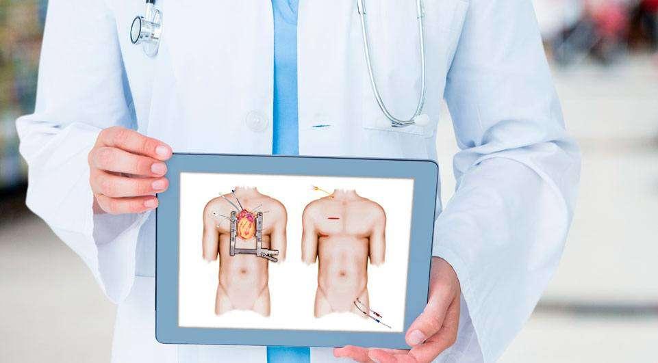 Procedimento: Cirurgia Cardíaca em adultos