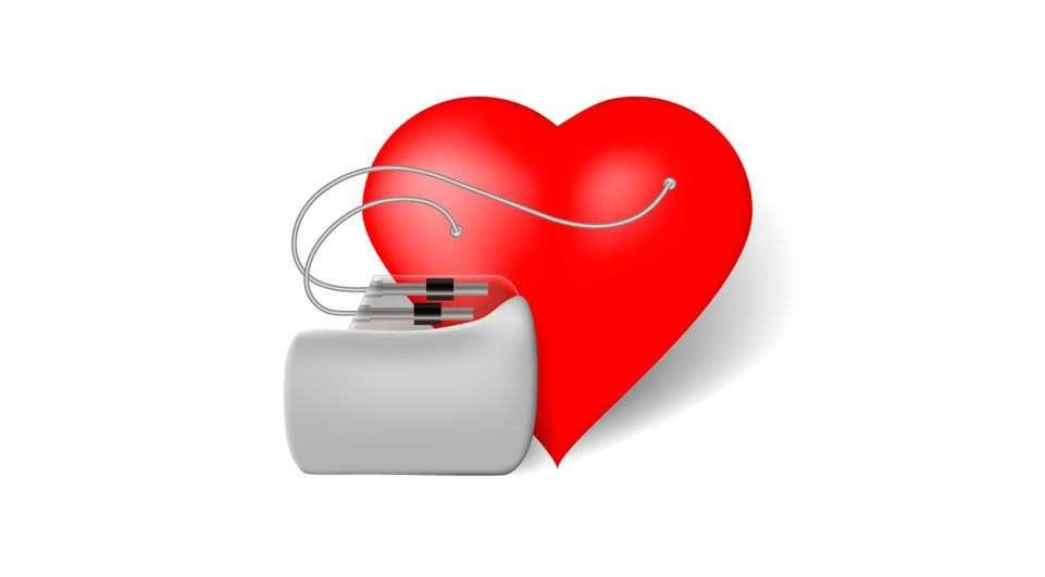 Procedimento: Estimulação Cardíaca - Marca-passos, Desfibriladores e Ressincronizadores