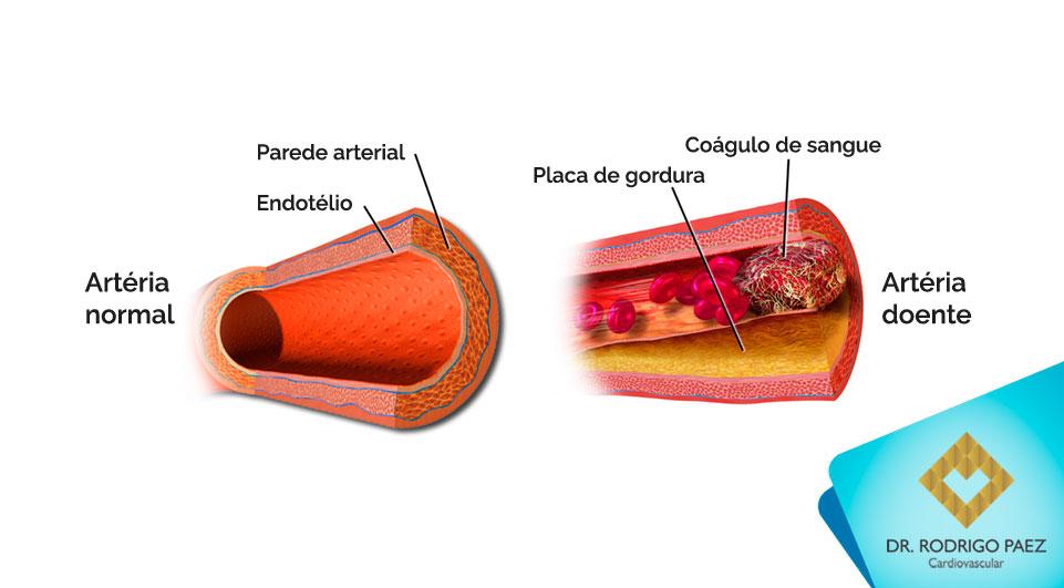 O que é a Aterosclerose?