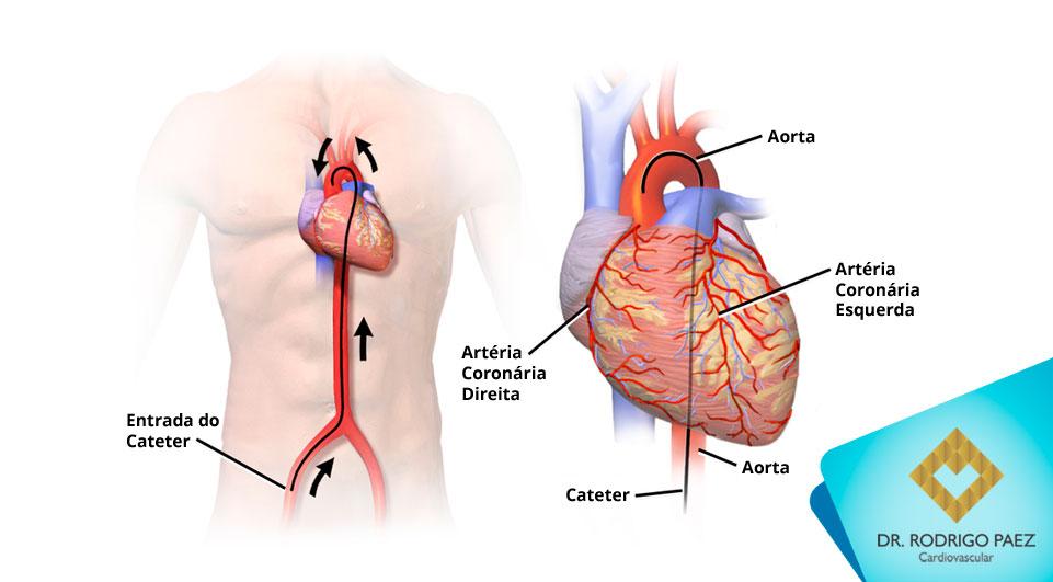 O que é o Cateterismo Cardíaco?