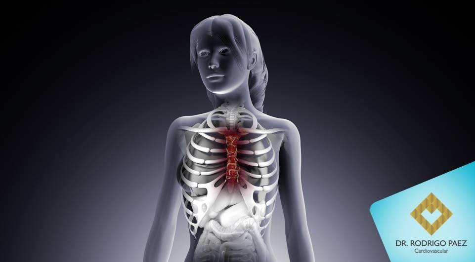 Fixação Rígida de Esterno - Melhorando resultados em cirurgia cardíaca.