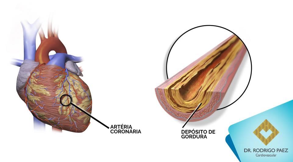 Doença Arterial Coronariana - uma visão geral da doença.