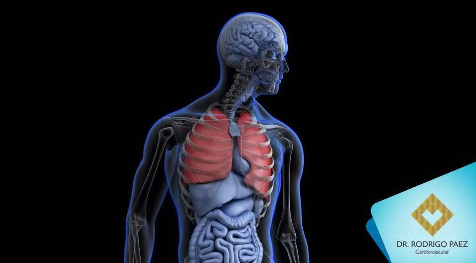 Falta de ar e dor no peito repentinas pode ser Embolia Pulmonar.