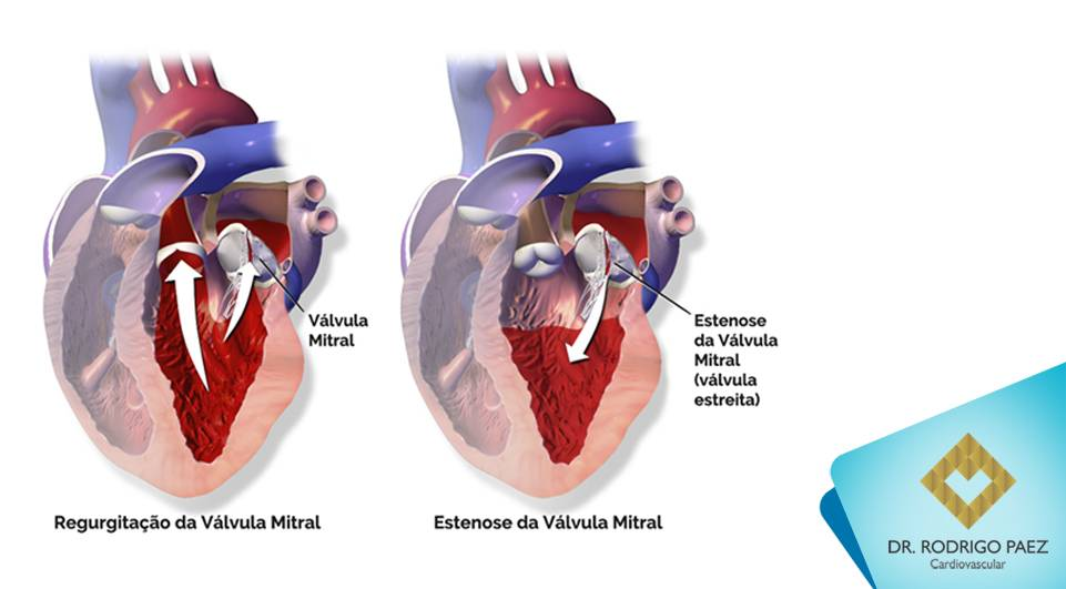 Insuficiência da Válvula Mitral - o que precisamos saber sobre ela?