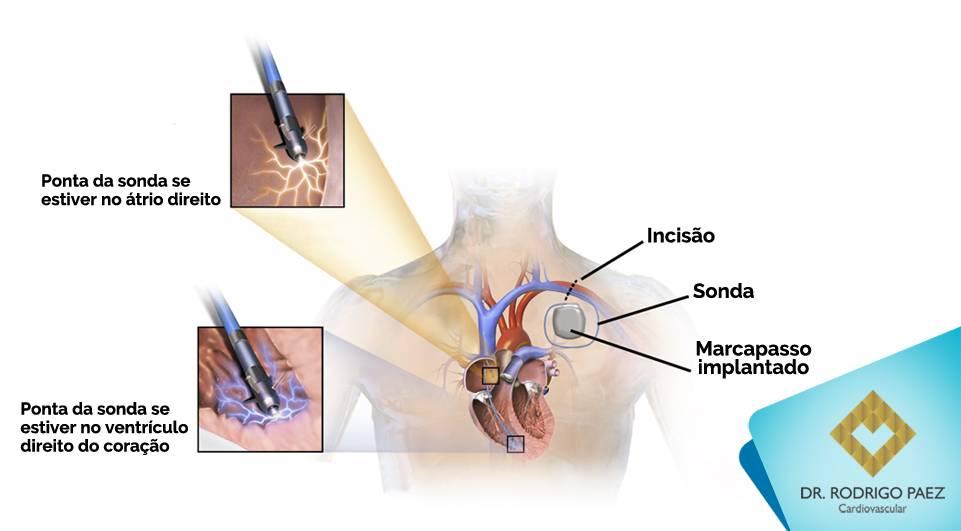Por que preciso de um Marcapasso e como é a cirurgia?
