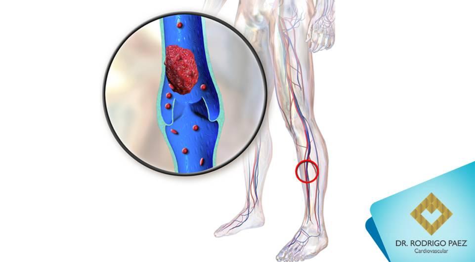 Saiba mais sobre Trombose Venosa Profunda e Tromboembolismo Venoso.