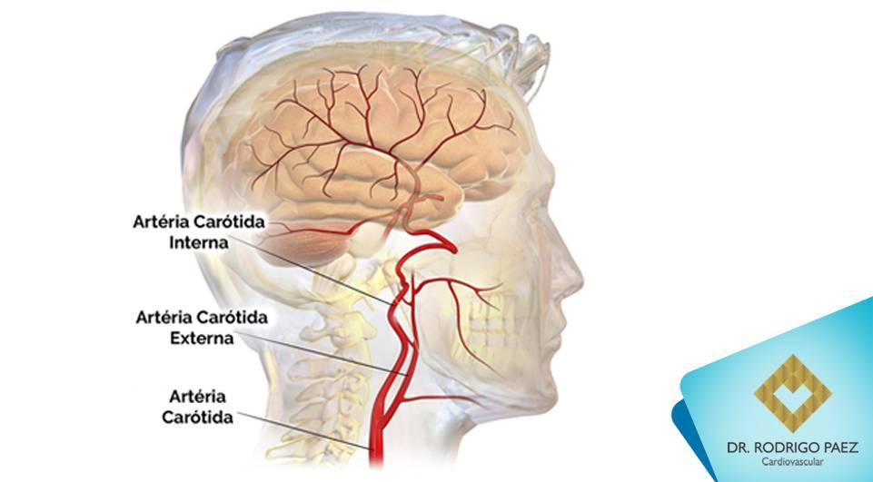 Doença Aterosclerótica Carotídea. Saiba mais sobre esta doença.