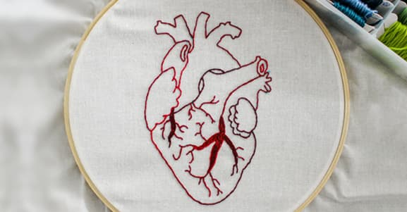 O que você precisa saber sobre cirurgia cardíaca?